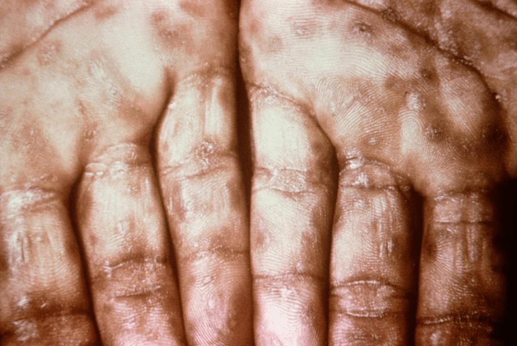 sarpullido de la sífilis secundaria en hombres